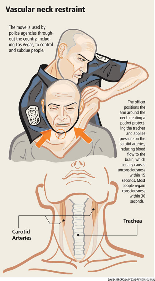 Proper Use Of Neck Hold Not Fatal Research Shows Las