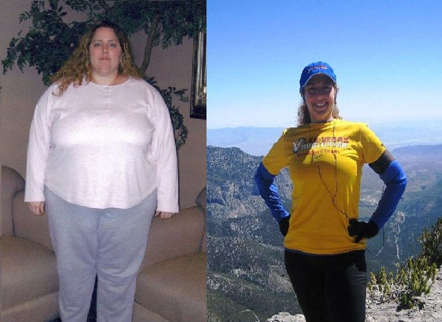 Michele Rothstein weighed 359 pounds before undergoing weight loss surgery in 2005. She made lifestyle changes after her surgery and now exercises almost daily.