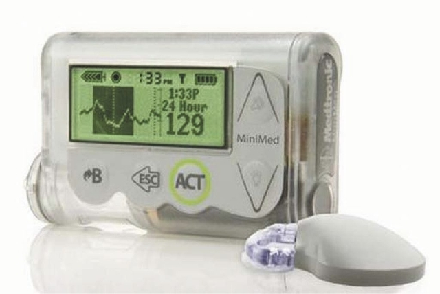 "The MiniMed Integrated System device, which doctors are reporting as a major step toward an ""artificial pancreas."""