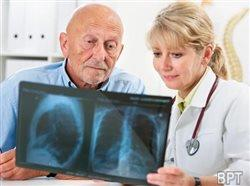 Personalizing lung cancer care through biomarker testing