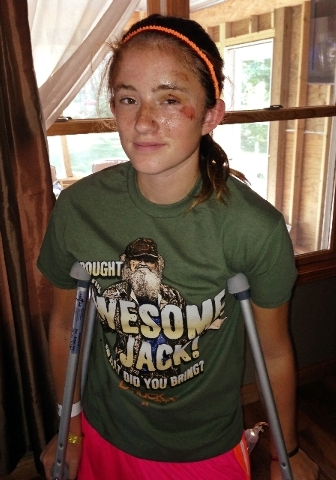 In this Sunday photo Abby Wetherell, 12, is at her home in Cadillac, Mich. Abby was mauled by a black bear in northern Michigan last week said Monday she feared for her life during the attack.