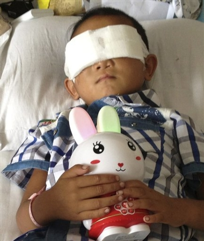 In this photo taken Aug. 28, six-year-old boy Guo Bin receives medical treatment in hospital after his eyes were gouged out in an horrific attack in Taiyuan in northwest China's Shanxi province. ( ...