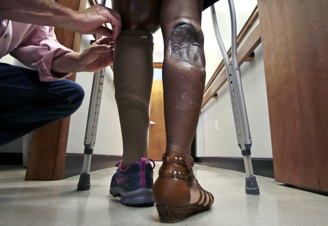Mery Daniel, a Boston Marathon bombing survivor, stands as Paul Martino, of United Prosthetics, adjusts a cover on top of the computerized knee of her prosthetic left leg on June 26. Daniel's righ ...
