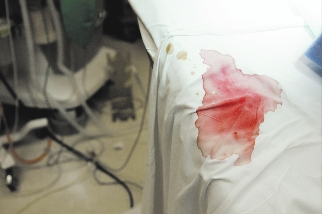 A bloody sheet is seen inside an operation room after a breast reconstruction surgery at UMC, Friday, Oct. 25, 2013, in Las Vegas. Environmental service aides act as the first line of defense agai ...