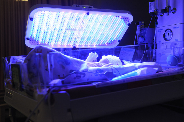 A baby gets photo therapy to treat jaundice in the Neonatal Intensive Care Unit in the women's services area at Centennial Hills Hospital in Las Vegas, Wednesday, Feb. 26, 2014. (Jerry Henkel/Las  ...