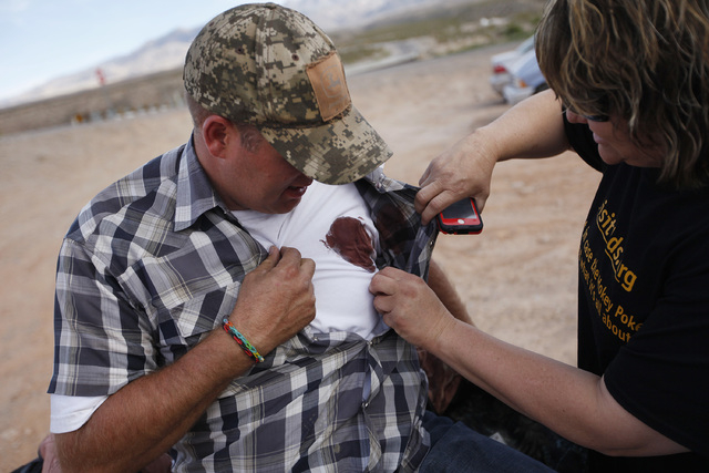 Krissy Thornton, right, looks at blood from a taser wound on Ammon Bundy near Bunkerville, Nev. Wednesday, April 9, 2014. Bundy was tased by Bureau of Land Management law enforcement officers. Bun ...