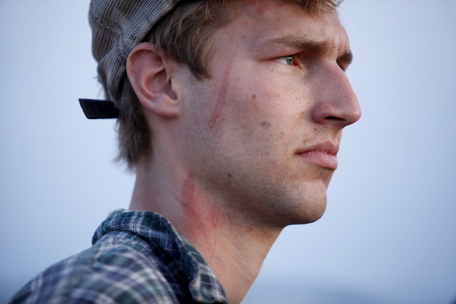Scratches can be seen on the face and neck of Spencer Shillig at the Lake Mead National Recreation Area near Overton, Nev. Thursday, April 10, 2014. Shillig and his brother Tyler Shillig were deta ...