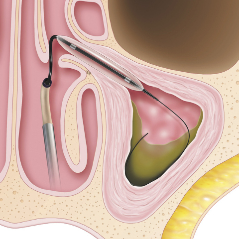 Balloon Sinuplasty (BSP) uses a small, flexible, balloon catheter to open up blocked sinus passageways and facilitate drainage of the mucus that builds up in patients suffering from chronic sinusi ...