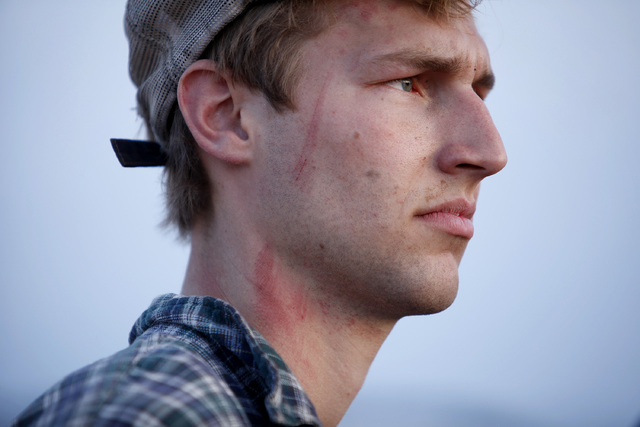 Scratches can be seen on the face and neck of Spencer Shillig at the Lake Mead National Recreation Area near Overton on Thursday, April 10, 2014. Shillig and his brother Tyler Shillig were detaine ...