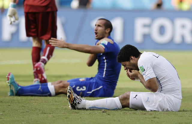 Italy's Giorgio Chiellini complains after Uruguay's Luis Suarez ran into his shoulder with his teeth during the group D World Cup soccer match between Italy and Uruguay at the Arena das Dunas in N ...