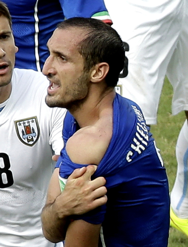 Italy's Giorgio Chiellini displays his shoulder showing apparent teeth marks after colliding with the mouth of Uruguay's Luis Suarez during the group D World Cup soccer match between Italy and Uru ...
