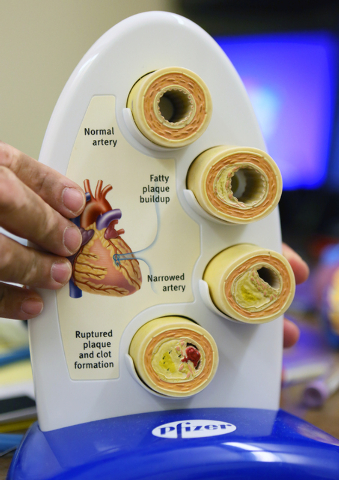 Dr. Kenneth Shah holds a model that shows a healthy artery in comparison to various arteries displaying problems relating to vascular disease at Vascular Institute of Southern Nevada Tuesday, May  ...