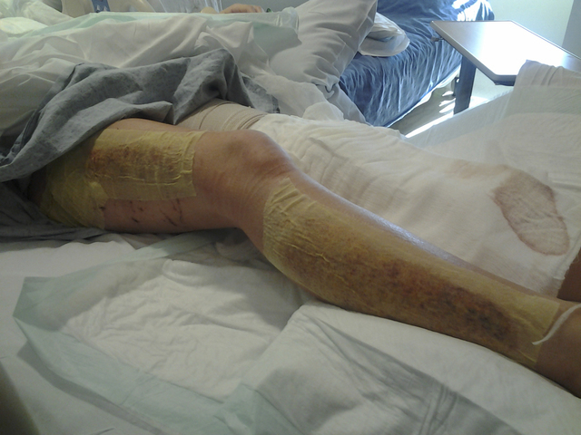 Courtesy photo A look at skater Michelle Rudski's injury while she was being treated in the hospital