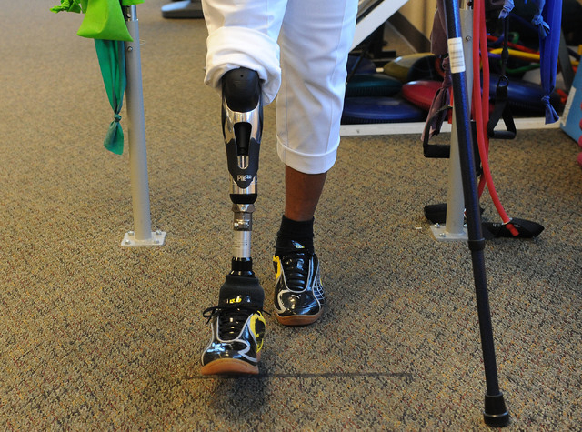 Elizabeth Bailey-Smith practices walking on her prosthetic leg at Matt Smith Physical Therapy, June 6. (Jerry Henkel/View)