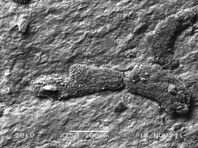 A scanning electron microscope image shows a new species of tiny fossilized alga UNLV researchers discovered in Esmeralda County. At a millimeter wide, the fossil looks to the naked eye like littl ...