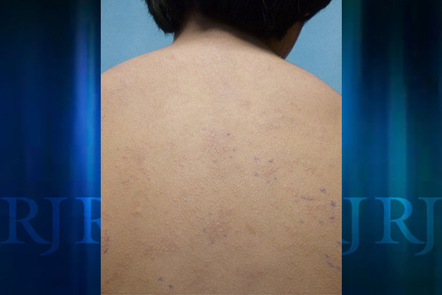 This photo provided by American Academy of Pediatrics shows a rash on an unidentified 11-year old boy from a nickel allergy. Case reports in medical journals detail nickel allergies from personal  ...