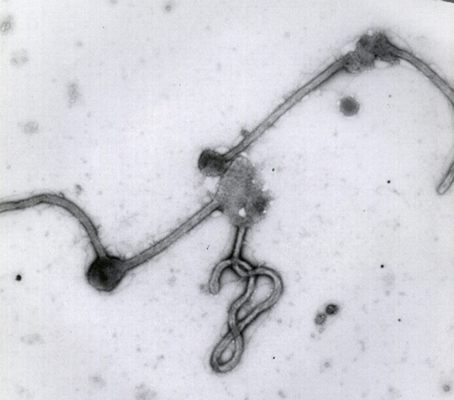 This undated photo made available by the Antwerp Institute of Tropical Medicine in Antwerp, Belgium, shows the Ebola virus viewed through an electron microscope. The World Health Organization on F ...