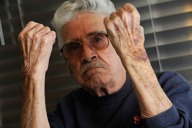 Retired Army veteran Milton Duran displays bruises that still remain on his wrists after he was arrested and handcuffed at the VA northwest clinic last March, in his Las Vegas home on Monday, Dec. ...