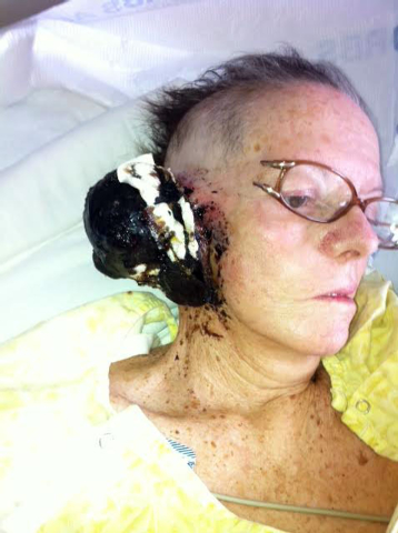 Provided photo from Shirley Andrews. After a long search for treatment, the Andrews found local neurosurgeon Dr. Bohdan Chopko (cq), who in April removed a large cancerous growth that took over Sh ...