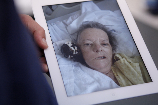 Dr. Bohdan Chopko uses an iPad to show a photo of his patient with a softball size tumor on the side of her skull before removing it using a skull based approach surgery during an interview at St. ...