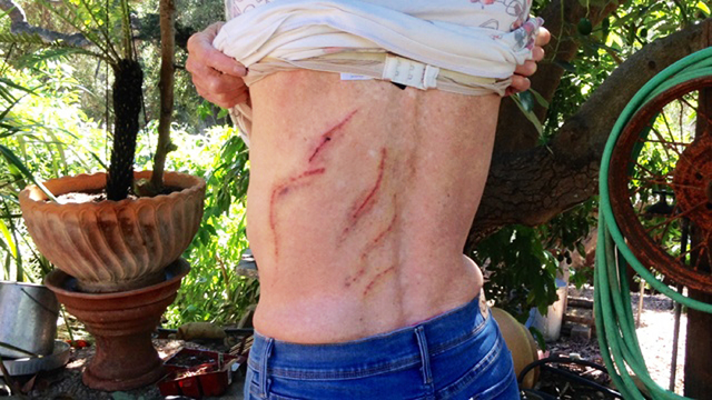Carpinteria Valley, Calif., rancher Emily Miles shows scars Wednesday, Sept. 24, 2014, she received after she was injured when she was attacked by a 300-pound black bear on Monday, Sept. 22. The C ...