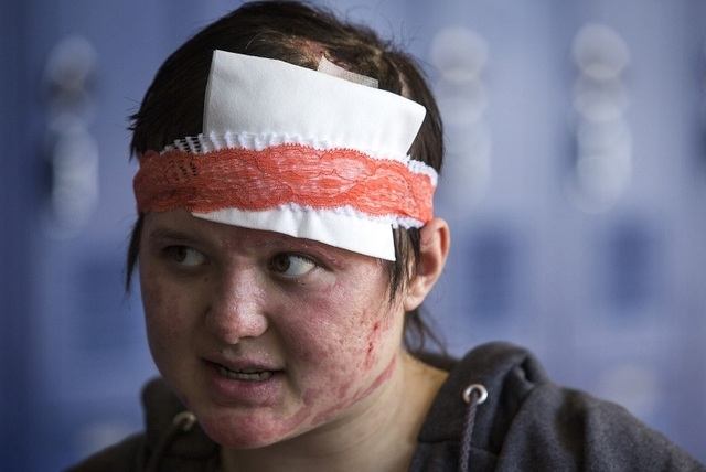 Basic High School student Kaycee Nitta as seen on Monday, Aug. 25, 2014. Nitta is one of seven students who were burned during a party after Basic High School's commencement ceremony on June 9,  ...