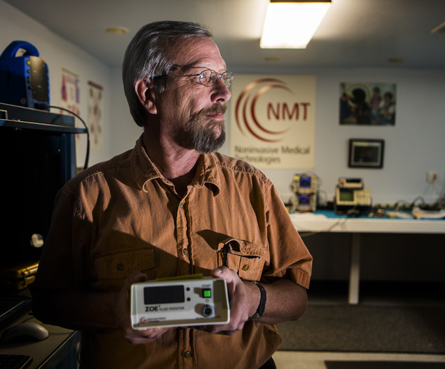 Phil Hamski, director of product development for  Noninvasive Medical Technologies, holds the ZOE fluid status monitor at the company's office at 6412 S. Arville Street on Monday, Oct. 13, 2014.   ...