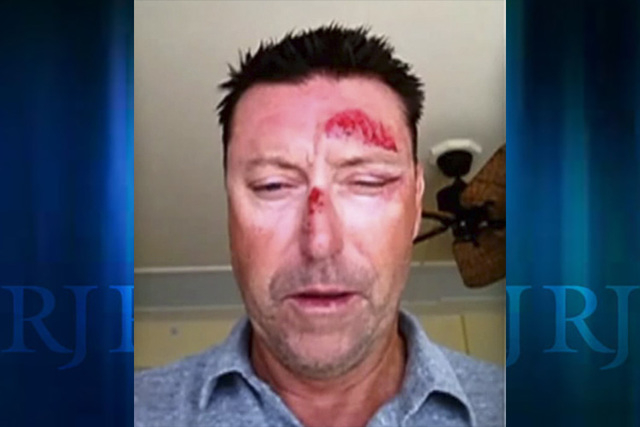 Australian golfer Robert Allenby was recovering from facial injuries on Saturday after he was kidnapped, beaten, robbed and dumped in a park in Honolulu, according to a report by the Golf Channel. ...