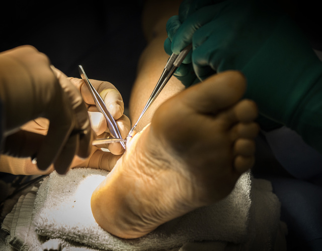Dr. Tim Tollestrup, a Henderson peripheral nerve surgeon, performs surgery, Tuesday, Jan.13, 2015, at Horizon Surgery Center, 10561 Jeffreys Street, Henderson.  He operated on a 53 year-old woman  ...
