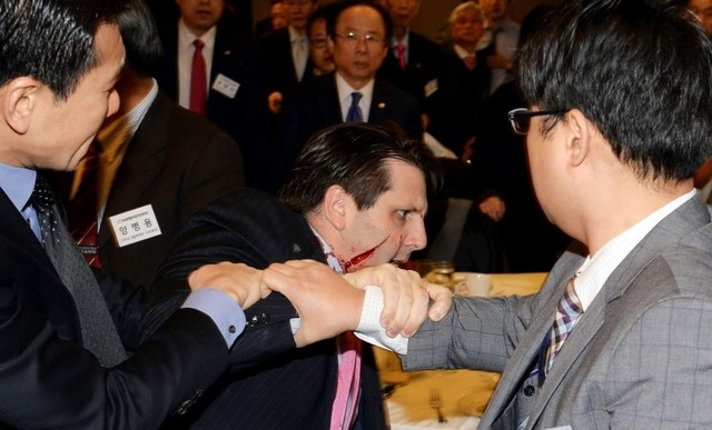 U.S. ambassador to South Korea Mark Lippert leaves after he was slashed in the face by Kim Ki-jong, a member of a pro-Korean unification group, at a public forum in central Seoul in this handout p ...