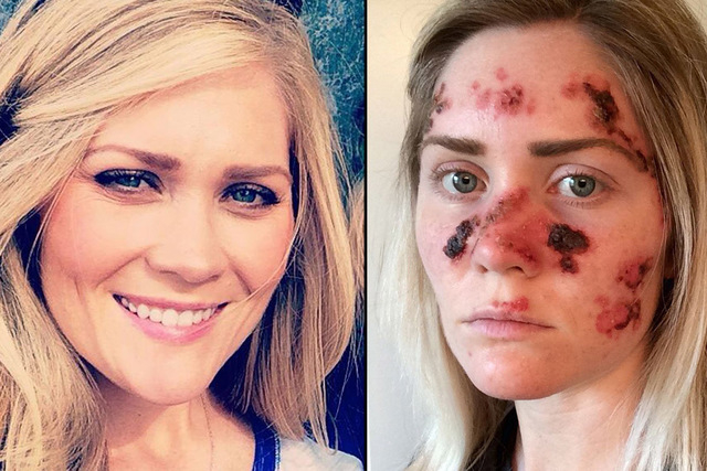 Tawny Willoughby used a tanning bed 4 to 5 times a week in high school. Now, at 27, she's dealing with painful skin-cancer treatments. This selfie of Willoughby, right, posted last month to Facebo ...
