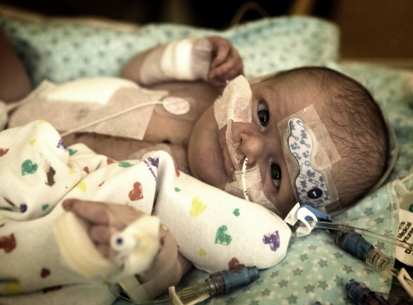 Ryland Beard appears alert at Sunrise Children's Hospital following heart surgery that was required when a heart defect was discovered shortly after his birth June 6. Follow Jeff Scheid on T ...