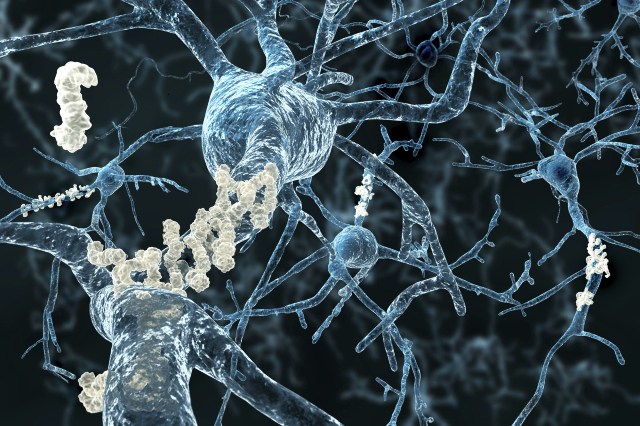 Alzheimer's disease - neurons with amyloid plaques (Thinkstock)