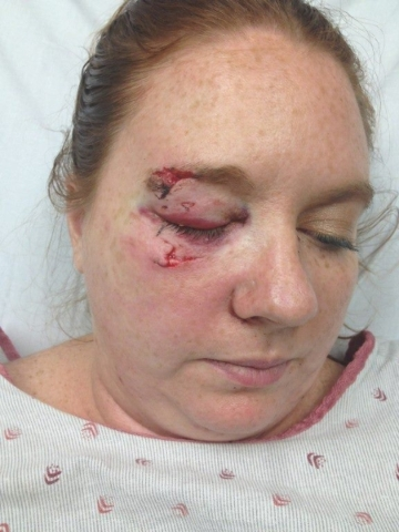 Las Vegas resident Liz Fogg is shown in a hospital bed with a shattered orbital bone after she was struck by a bat that flew into the stands at an Arizona Diamondbacks game in September 2013. COUR ...