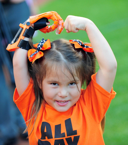 Aug 17, 2015; Baltimore, MD, USA; Hailey Dawson prepares to throw out the first pitch with a 3-D printed hand, prior to the game between the Oakland Athletics and Baltimore Orioles at Oriole Park  ...