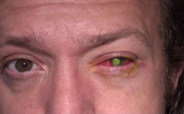 Chad Groeschen developed a dangerous bacterial infection in his left eye after sleeping in contact lenses. (CNN photo)