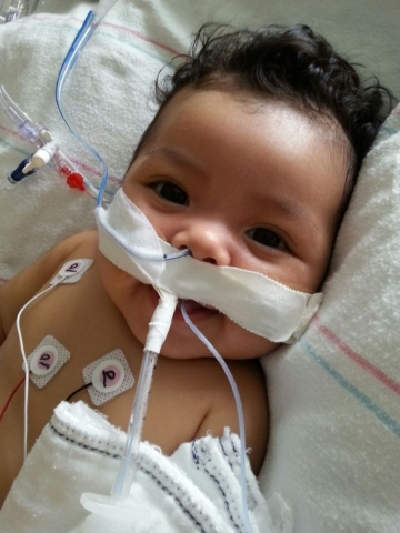 Baby Ellie Lim is seen at the Mattel Children's Hospital in Los Angeles. Courtesy, Lim family