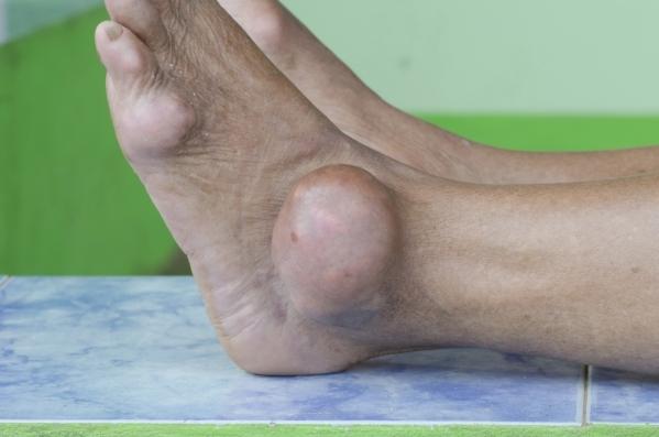 foot of gout patient