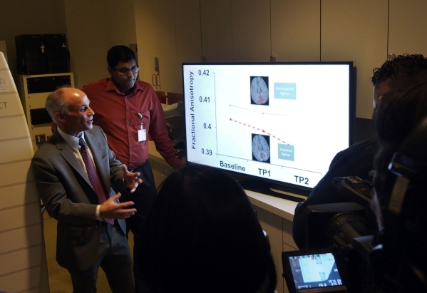 Dr. Charles Bernick, left, and Virendra Mishra, MRI Research Engineer, center, explain an MRI scan to media at the Lou Ruvo Center for Brain Health in Las Vegas, Friday, Feb. 5, 2016, during an ev ...