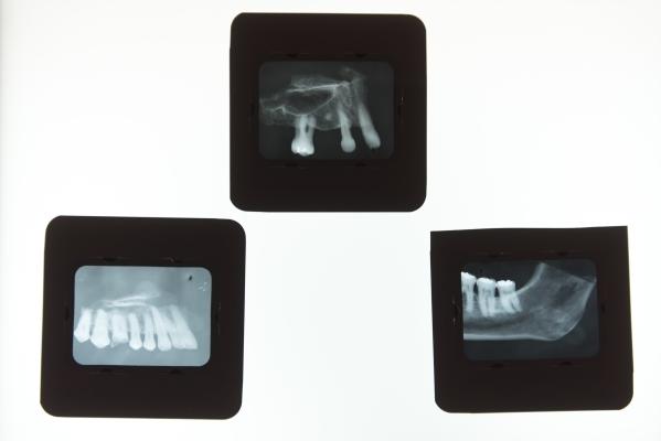"Dental X-rays are seen during the Forensics Day ""CSI-Mini-Camp"" at the Las Vegas Natural History Museum in Las Vegas Sunday, Feb. 21, 2016. Jason Ogulnik/Las Vegas Review-Journal"