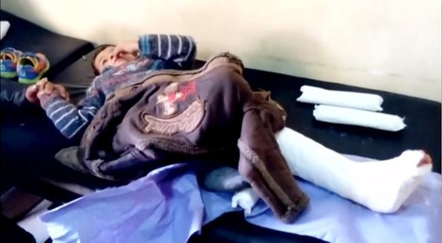 A boy lies on a bed with a broken leg after what is said to be a missile attack on a hospital in Azaz, Aleppo, Syria, February 15, 2016 in this still image taken from a video on a social media web ...