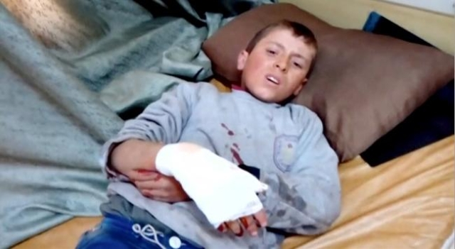 A boy lies on a bed with an injured hand after what is said to be a missile attack on a hospital in Azaz, Aleppo, Syria, February 15, 2016 in this still image taken from a video on a social media  ...