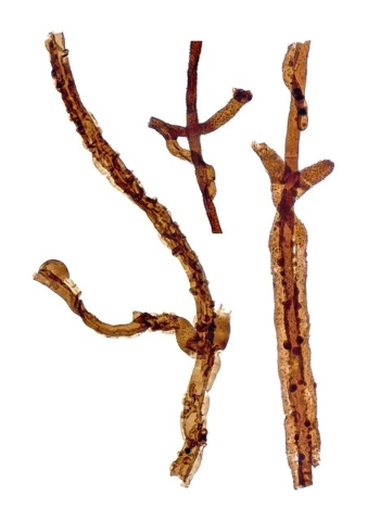 Three filaments of Tortotubus from Gotland, Sweden, showing the growth of secondary branches along the main filament, is shown in this image released on March 2, 2016. (Martin R. Smith/Reuters)