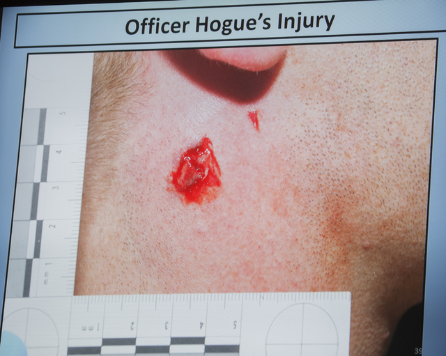 A video screen image shows a bullet wound on the neck of officer Evan Hogue, 28, during a fact-finding review at the Clark County Government Center, Friday, May 20, 2016. (Jeff Scheid/Las Vegas Re ...