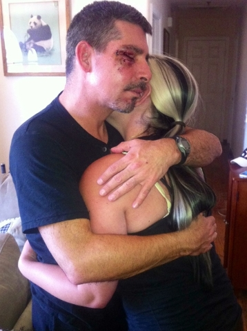 """Cal Calderaro is shown in his last picture with his daughter Jessica. """"Weeks later, she would be gone,"""" he wrote in an email. """"I was recovering from a bike accident during Ironman training and had ..."""