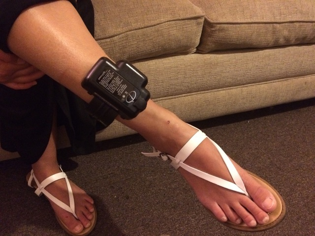 Katie (last name withheld) who is undergoing court-ordered treatment for drug addiction, shows off her ankle monitor May 7, 2016. Her life was traumatic as a toddler in a meth-addicted household.  ...