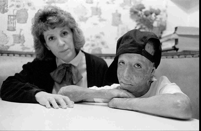 David Rothenberg, right, now known as Dave Dave, was set on fire by his father in an Orange County hotel room. He is shown with his mother, Marie Rothenberg, in this undated photo. His father, Cha ...