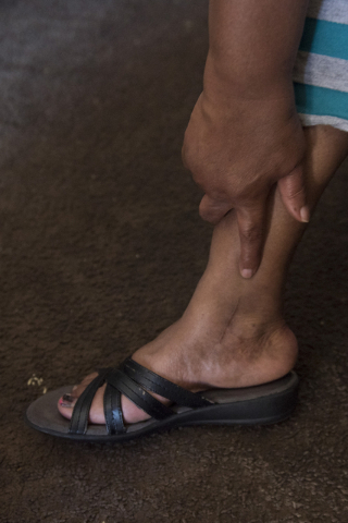 Janice Bullocks points to where a metal pin which has been placed into her ankle following a car accident accident more than a year ago. Bullocks said during an interview at her Las Vegas home Sun ...