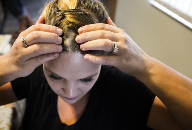 Jolie Furrow, 32, shows one of six cysts on her head on Thursday, Aug. 11, 2016 in Las Vegas. The family claims her health issues are caused by tainted water her parents consumed while her father  ...