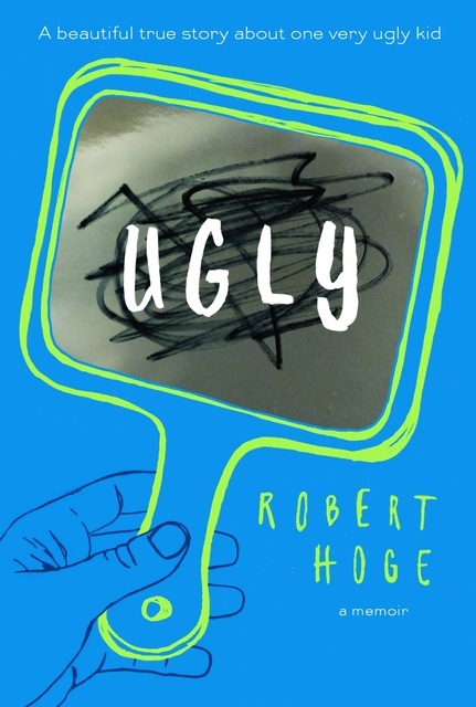 "Robert Hoge shares his story in the new book ""Ugly."" Special to View"
